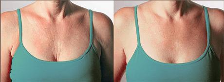 Voor en na een behandeling aan de hals en decolleté met fillers