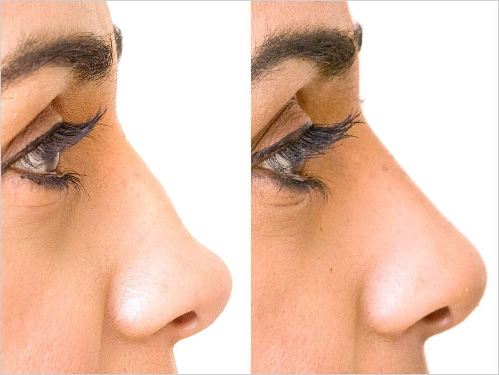 neusbrug voor en na foto met filler