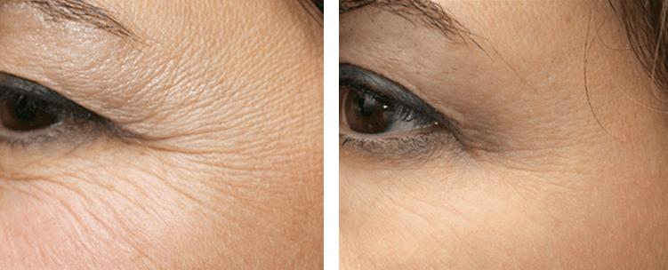 Voor en na foto kraaienpootjes met Botox