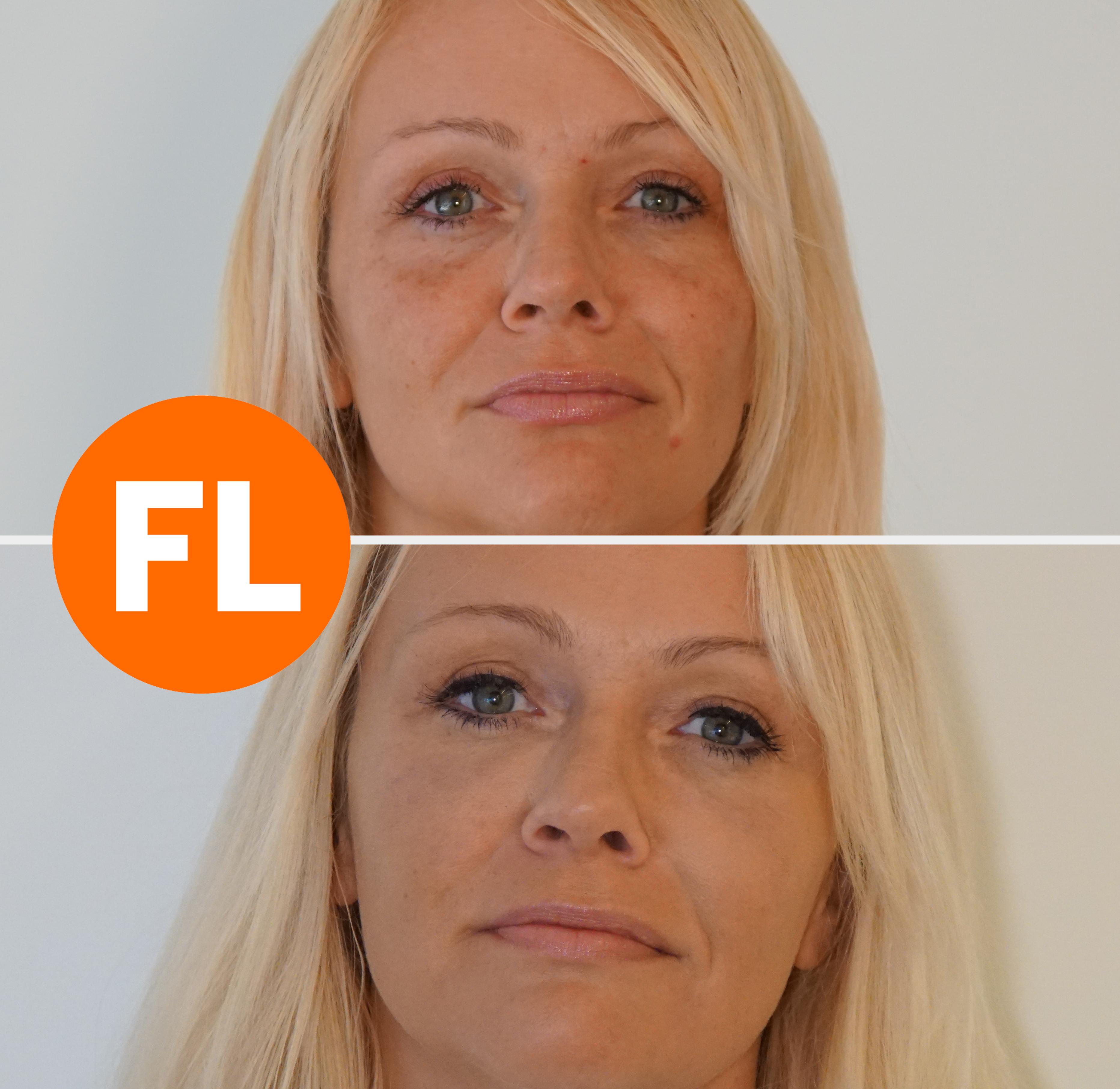 Voor en na foto traangootbehandeling met fillers