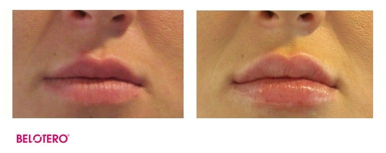 belotero-lippen