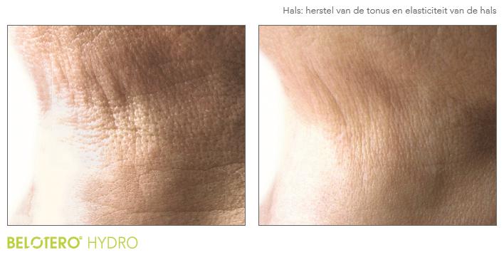 Voor- en na-foto van de hals met Hydro Skin behandeling