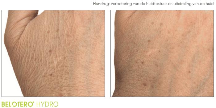 Voor en na foto van de handen met Hydro Skin behandeling