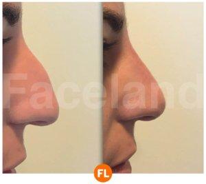Voor en na foto van neuscorrectie met injectables