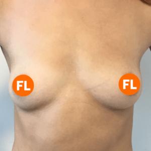 Foto voor de borstvergroting