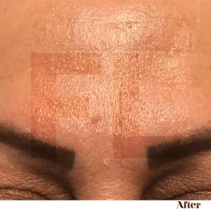 After foto van de fronsbehandeling met Botox