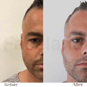 voor en na de ooglidcorrectie bij Faceland