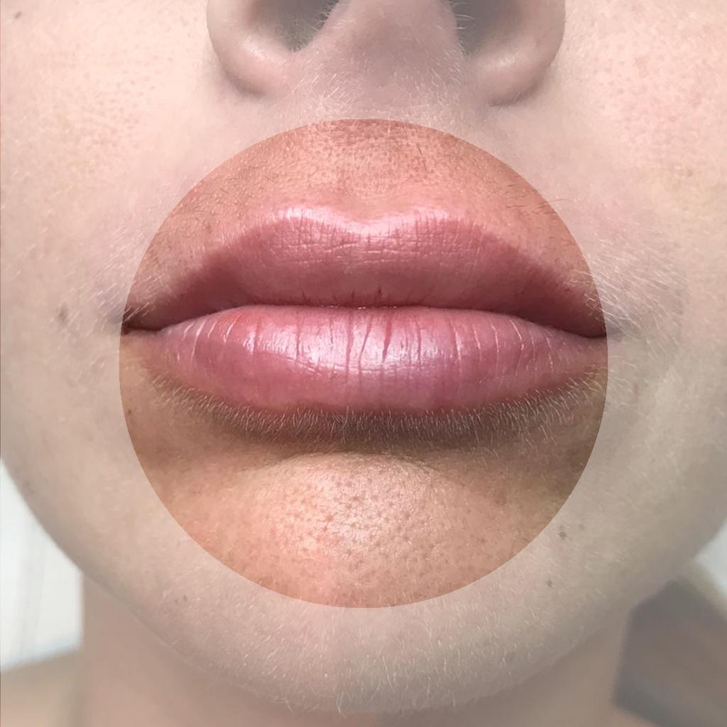 Lip filler Faceland