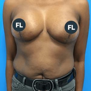 borstlift na operatie