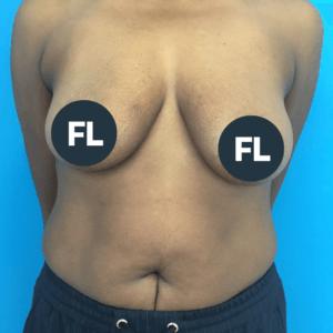 borstlift voor de operatie