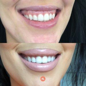 gummy smile behandeling